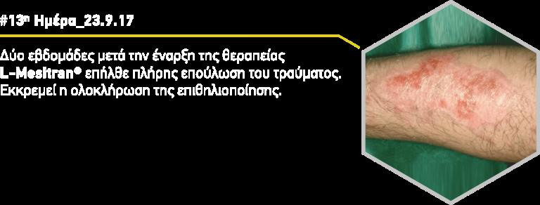 ximiko-egkauma